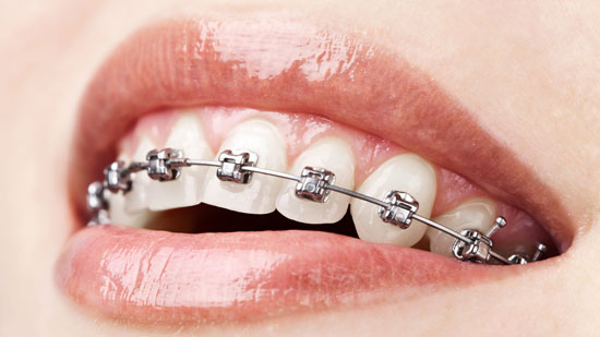 Now everyone can benefit from our expert orthodontist teeth straightening systems at our newly opened London clinic