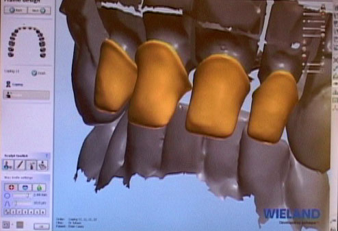 Zirconia Based Crowns
