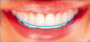 how to minimize smile lines